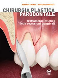 Chirurgia Plastica Parodontale - Trattamento estetico delle recessioni gengivali ( 2 vol.)
