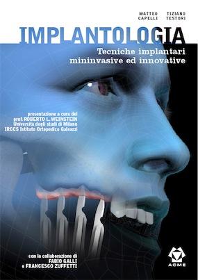 Implantologia - Tecniche Implantari Mininvasive ed Innovative
