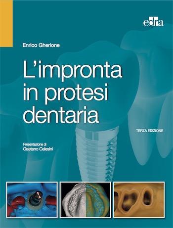 L' Impronta in Protesi dentaria + OMAGGIO