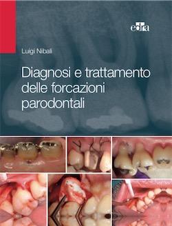 Diagnosi e Trattamento delle Forcazioni Parodontali