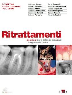 ( Styleitaliano Endodontics ) Ritrattamenti - Soluzioni per le patologie periapicali di origine endodontica