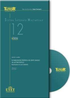 DVD Med Tutor Odontoiatria - LA RIABILITAZIONE PROTESICA DEL DENTE SINGOLO NEL SETTORE ESTETICO ( n. 12 )