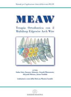 MEAW Terapia Ortodontica con il Multiloop Edgewise Arch Wire