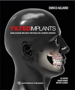 Tilted Implants - Riabilitazione implanto-protesica del paziente atrofico