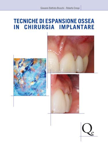 Tecniche di Espansione Ossea in Chirurgia Implantare