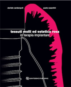 Tessuti molli ed estetica rosa in terapia implantare