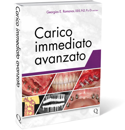 Carico Immediato Avanzato