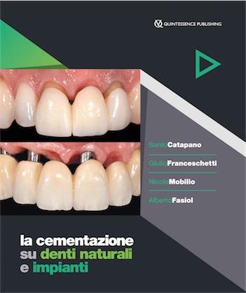 La Cementazione su Denti Naturali e Impianti