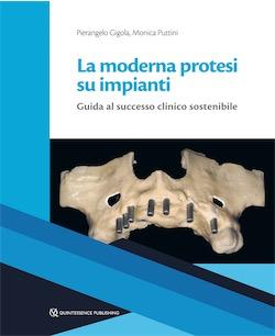 La Moderna Protesi su Impianti - Guida al Successo Clinico Sostenibile