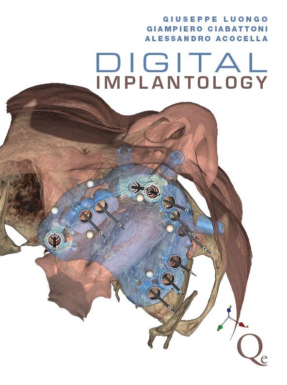 Digital Implantology  ( Testo in Italiano )