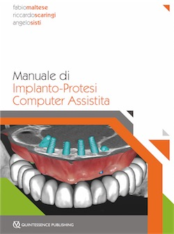 Manuale di Implanto-Protesi Computer Assistita