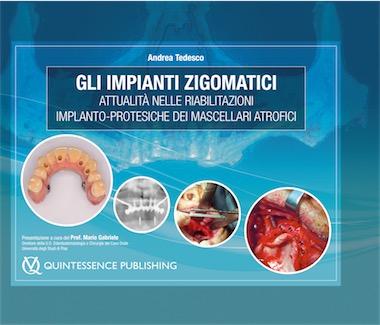 Gli Impianti Zigomatici - Attualità' nelle riabilitazioni implanto-protesiche dei mascellari atrofici