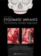 Zygomatic Implants - The anatomy guided approach